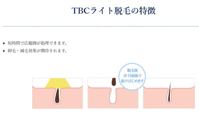 TBCのライト脱毛