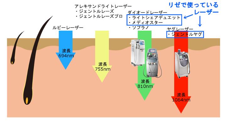 リゼクリニックの脱毛レーザーの波長を比較