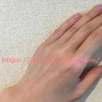 菜月さんのやぶ形成外科・美容外科手の甲指脱毛体験口コミ